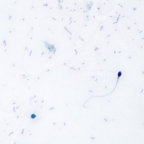 Biopsia testicular-Conceptum